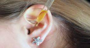 Auresoil sensi secure - poboljšati sluh - gdje kupiti - kako funkcionira - cijena