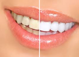 Snowhite Teeth Whitening - Izbjeljivanje zubi – ljekarna – gel – instrukcije