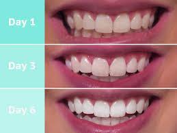 Snowhite Teeth Whitening – Hrvatska – cijena – Amazon