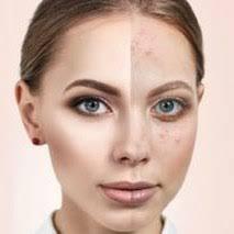 Skin!O - za pomlađivanje – sastav – Amazon – test